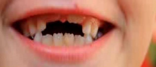 Ce qu'une histoire de dents peut vous apprendre sur l'art de communiquer